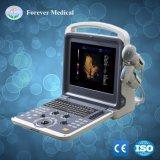 12 ecografia medica diagnostica di Doppler Digitahi di colore completo di pollice LED