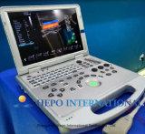 Scanner d'ultrason d'onde entretenue de Doppler de couleur de Digitals 4D d'équipement médical