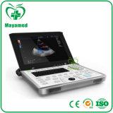 Laptop van de hoge Precisie mijn-A039A de Medische Draagbare Digitale Apparatuur van de Machine van de Scanner van de Ultrasone klank van Doppler van de Kleur Hart voor Hart