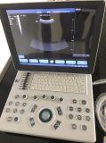 15-дюймовый ноутбук ультразвукового сканера с очень высоким качеством изображения