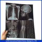 Inkjet Film de radiographie médicale 35x43cm Bleu Pet sous-sol sec de l'image des films