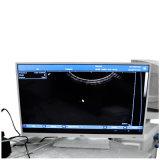 Tipo móvel varredor Rus-9000c do trole do ultra-som com plataforma opcional do PC da ponta de prova Transvaginal Rectal linear Micro-Convexa convexa com Imagem-Maggie desobstruída