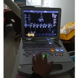 심장 Portable Ultrasound Machine Price Medical Sonar 3/4D Echocardiography