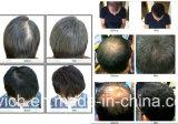 Spruzzatura della fibra della costruzione dei capelli di trattamento delle sferze delle estetiche della donna