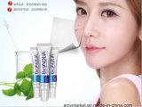 Crème 30g d'enlèvement d'acné de Bioaqua/d'acné de crème hydratante contrôle de défaut