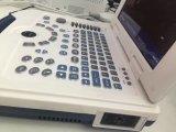 Portátil/80 Elementos/ ecógrafo portátil (MSLPU09)