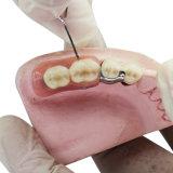 طقم أسنان راتينج سنّ مع ملاحق ثمينة