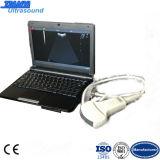 Laptop B Ultrasound Scanner met Battery