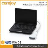 Cer-anerkannter Laptop-Ultraschall-Scanner Rus-9000f-Stella