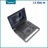 L'équipement médical l'échographie Doppler couleur Sonoscape X5