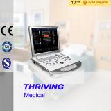 Thr-Usc60p portátil aparato de ultrasonido portátil Doppler Color