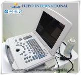 Laptop het Medische Systeem van de Ultrasone klank van het Apparaat met Ce