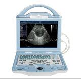 Полный одобренный CE системы Ysd1208 ультразвука цифров диагностический Handheld