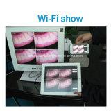 Mlg M-958un WiFi intra-oral LCD 15 pouces de la caméra CCD Sony 1/4