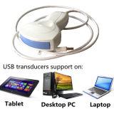 Sonda de ultra-som USB Digital completa para laptop em clínicas, emergência e exterior