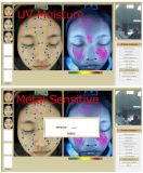 Neueste Qualitäts-bewegliches Gesichts-Haut-Analysegerät für Laser-Behandlung