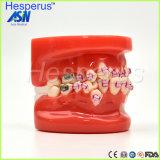 El modelo orto de Dontists con el metal acorcheta los dientes irregulares