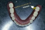 Имплантат структура титана мостом для клиники по-китайски стоматологической