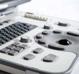 A6 простой в использовании Hand-Carried ультразвуковой системы