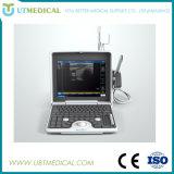 가장 싼 Portable 3D 초음파 기계 가격
