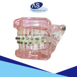 ブラケット-レーザーのマークの溶接網縛っている歯科矯正学の自己
