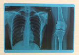Pellicola di raggi X medica blu dell'animale domestico del getto di inchiostro di pollice 8*10 usata
