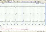 Promoción! ! ! A partir de 3.01 a 5.31 sólo! ! Con tres canales de ECG de 24 horas de registro Holter ECG dinámico con pantalla a color, a la venta, con especial Pice!