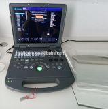 Preiswerter Preis-Farben-Doppler-Laptop-2D bewegliche medizinische Ultraschall-Maschine für Schwangerschaft-Diagnose