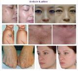 Schmerzlose Laser-Tätowierung-Abbau-Schönheits-Multifunktionseinheit