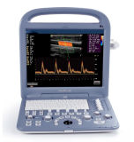 CE Approved Portable Ultrasound Scanner with Convex and Transvaginal Probes