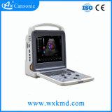 Explorador portable del ultrasonido de Douppler del color de Wuxi Cansoinc