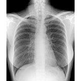 Hochfrequenzdigital-Röntgenfotografie-Dr. System (25KW, 200mA)