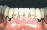Protesi dentaria smontabile telescopica dentale