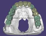 Ponte superior do implante dental do Zirconia cheio do contorno All-on-6