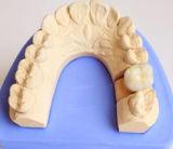 中国の実験室の中心からのクリニックのためのPfmの総義歯