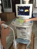 scanner medico Pieno-Digitale di ultrasuono di 4D Device&Color Doppler