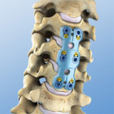 Spinal System의 전방 Cervical Plate