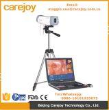 Colore elettronico approvato Digital di Colposcope Rcs-400 del Ce con la macchina fotografica del CCD SONY per Vaginalitis, Ectropio cervicale, cervicitis-Candice