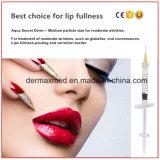 L'acide hyaluronique acide lèvre des injections de remplissage