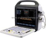 Ultrasuono portatile diagnostico di Doppler di colore delle attrezzature mediche 3D/4D dell'ospedale