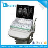 BS-Ss-7 15 pollici - macchina tenuta in mano dello scanner di ultrasuono dell'alto schermo di definizione LED con la batteria incorporata