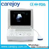 Scanner approvato di ultrasuono del computer portatile del Ce su Vendita-Stella