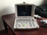 Scanner qualifié élevé portatif d'ultrason d'équipement médical de multiparamètre