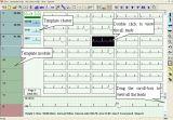 昇進! ! ! 3.01から5.31からのみ! ! 無線ポータブルUSB2.0ダイナミックなECG/EKGのシステムTelemedicine