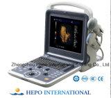 デジタル携帯用カラードップラーシステム超音波(HP-UC600P2)