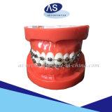 Material de ortodoncia auto ligar los soportes con ganchos de 12345