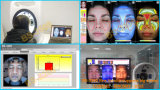 Machine portative d'analyseur de peau