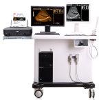 Chariot du scanner avec station de travail du système à ultrasons
