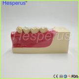 Doutor Posterior adequado do modelo da decomposição do tecido dos dentes do modelo dental dos dentes mais baixo com magnético