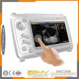 Instrument médical Portable Ultrasound Scanner Hospital (SonoMaxx 300)